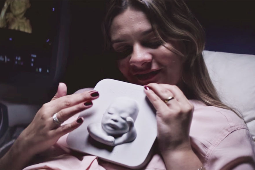 blind-pregnant-woman-look-unborn-son-3d-printing-ultrasound-huggies