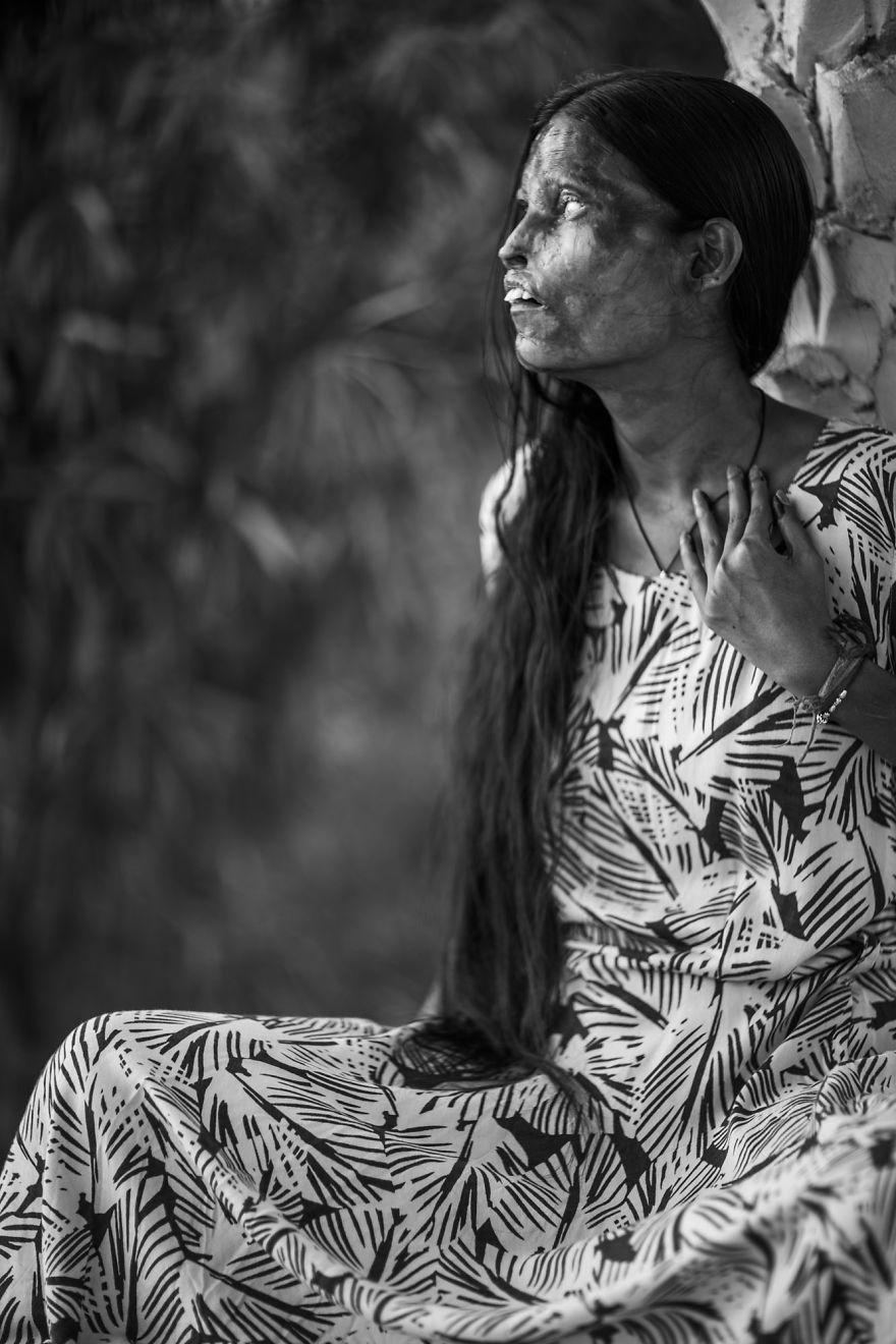 portraits-of-acid-attacks-survivors-in-india-sheroes-hangout (1)
