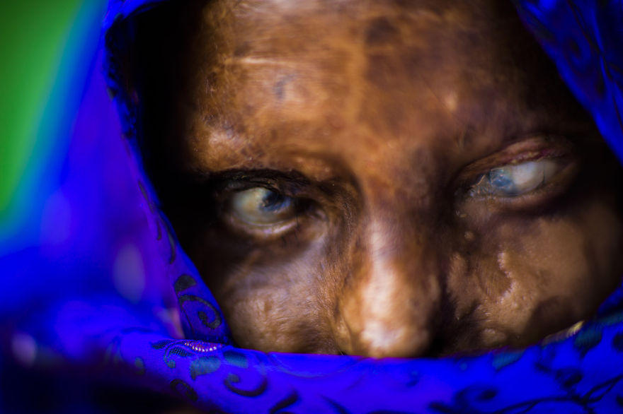 portraits-of-acid-attacks-survivors-in-india-sheroes-hangout (3)