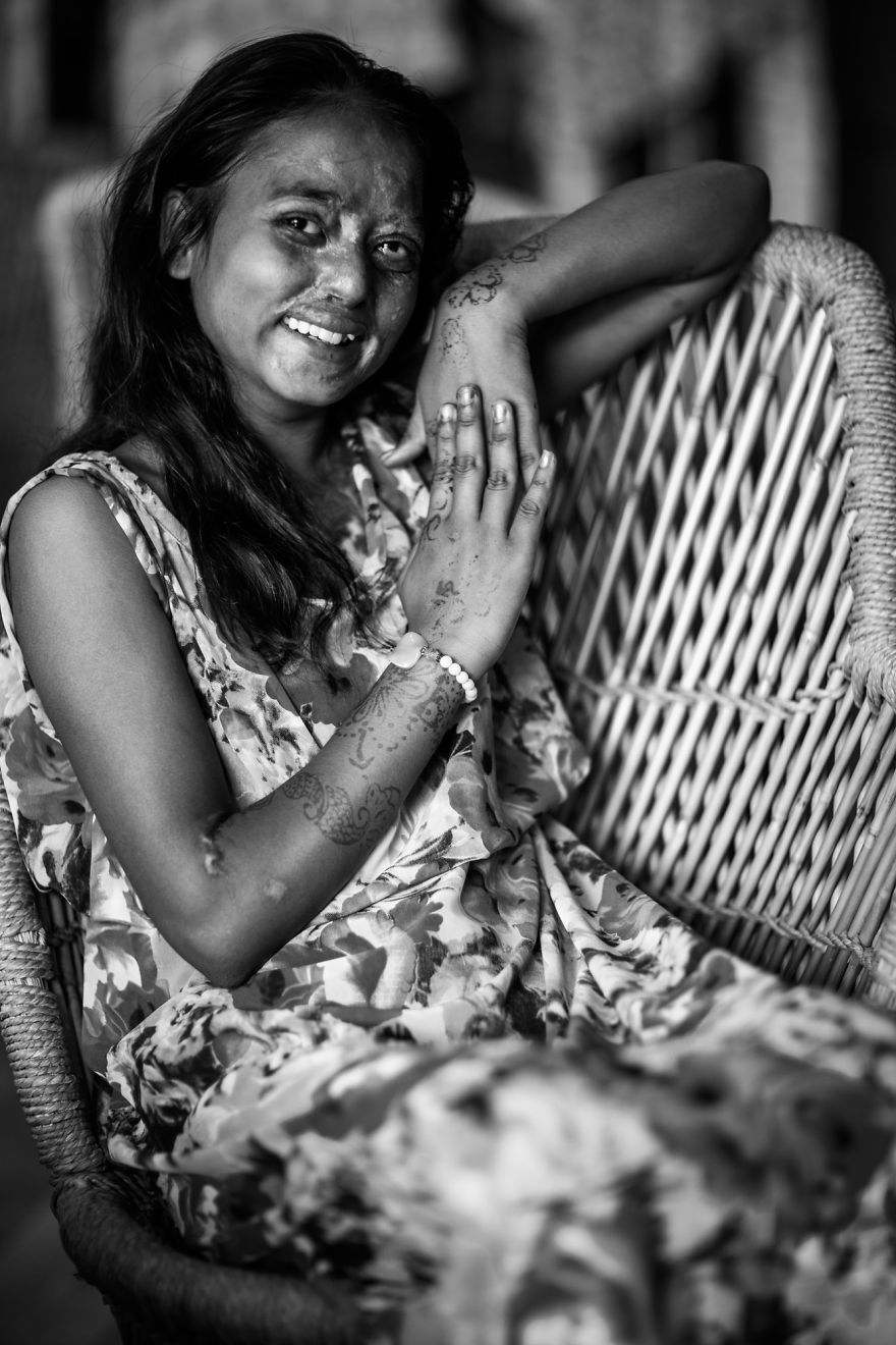 portraits-of-acid-attacks-survivors-in-india-sheroes-hangout (6)