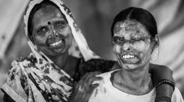 portraits-of-acid-attacks-survivors-in-india-sheroes-hangout